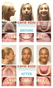 David Ross patient before and after