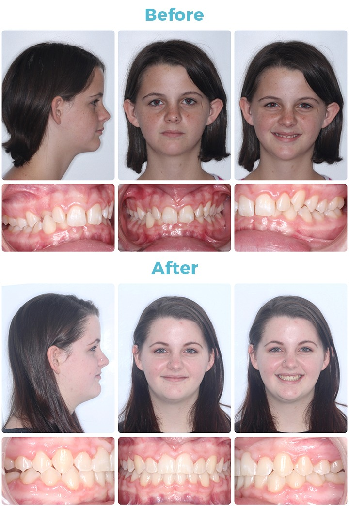 Before and After Patient Photo